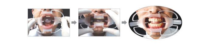 口角鈎 ダブルワイダー